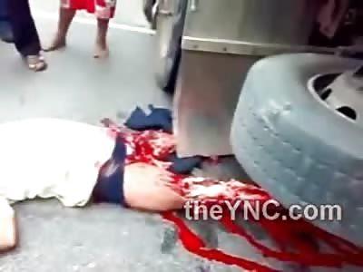 Man Suffers Horrific Leg Mangling underneath Truck