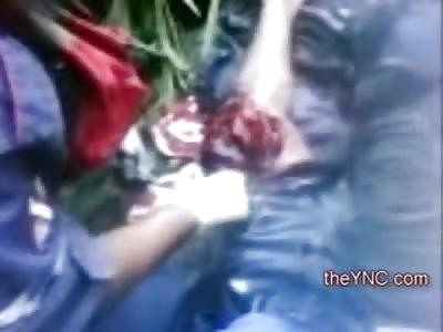 Bubbling Blood inside Man's Rpped Open Leg
