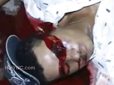 Man Shot to Death Dies ... Blood Forms Blood Goggles Around his Eyes