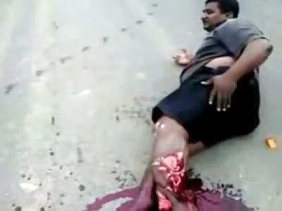 Man Leg in Horrific Shape