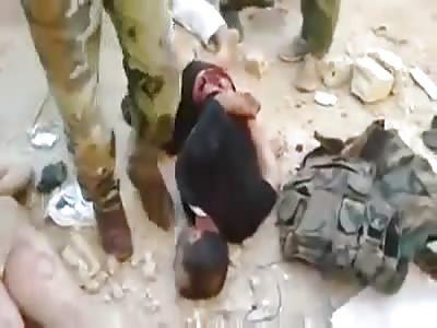 Assad Gangs Torture Civilians!! 1 Guy Gets his Teeth Collected!!!