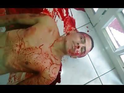 Thug Agonizes after Being Shot