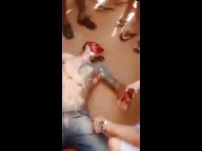 Faceless man Gives His Last Breath on Camera