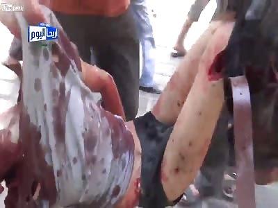 Brutal Aftermath Of Random Shelling by FSA Rebels