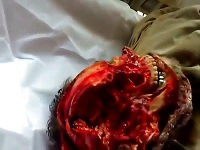Iraqi terrorist with skull torn apart