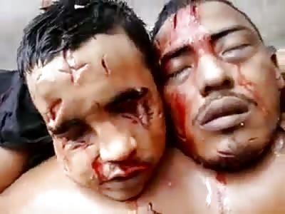 scenes of massacre in ( Pedrinhas M.A Brazil)