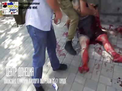 The civil war in Ukraine
