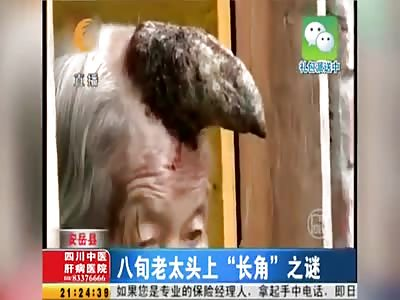 ELDERLY WOMAN WITH RARE CUTANEOUS HORN