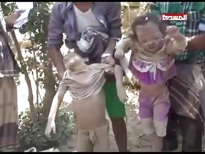 CHILDREN AFFECTED IN THE YEMEN NORTH BOMBARDMENT