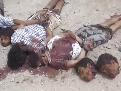 BLOODSHED IN YEMEN
