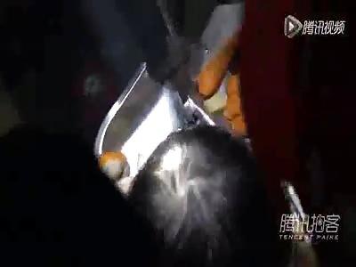 2 yo girl arm stuck in meat grounder