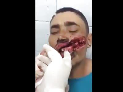 Devastating Machete Wound to Face