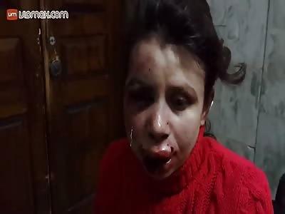 Anti-government journalist Tetyana Chornovol beaten up in Ukraine